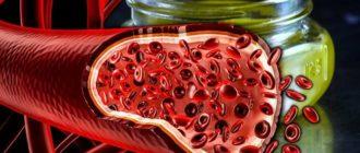 Как легко очистить артерии?