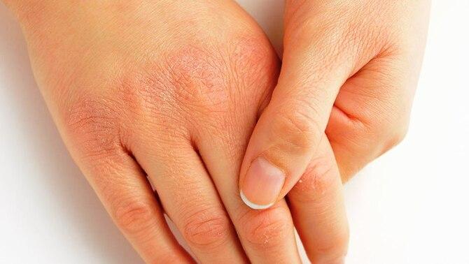 Как избавиться от сухости кожи рук?