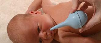 Убираем сопли у новорожденных: как бороться с насморком у младенцев