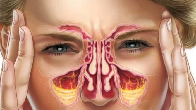 Воспаление придаточных пазух носа: причины, симптомы и лечение